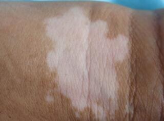 武汉影响白斑病治疗效果的原因是什么