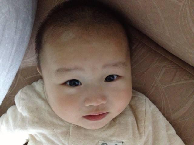 武汉儿童患了白癜风怎么治才好?